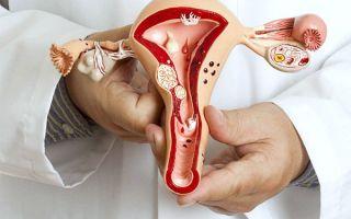 Наружный эндометриоз