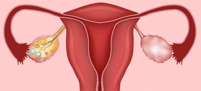 Киста в левом яичнике: причины возникновения и лечение