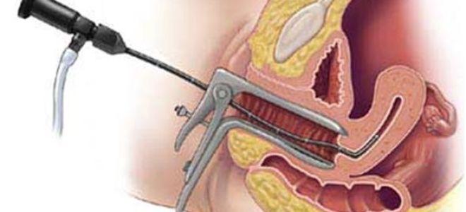 Гистероскопия полипа эндометрия