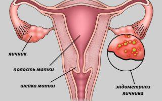 Как лечить эндометриоз на левом или правом яичнике