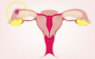 Как понять что лопнула киста яичника и какие будут последствия?