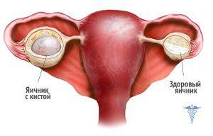 наличие новообразований на яичнике
