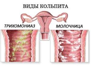 молочница, как неправильный диагноз