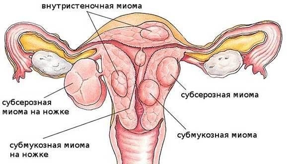 субмукозная и субсерозная миома и их расположение в матке