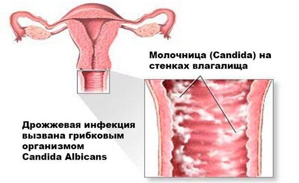 женская молочница