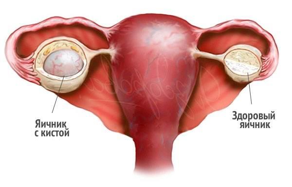 киста на яичнике: причины и симптомы разрыва