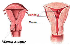 что такое маточные полипы
