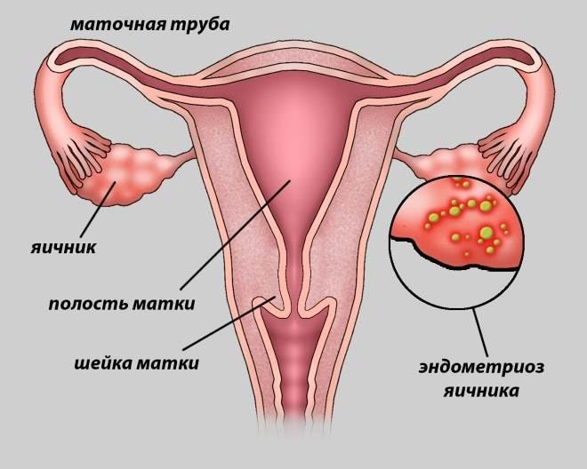 как выглядит эндометриоз в матке на яичниках