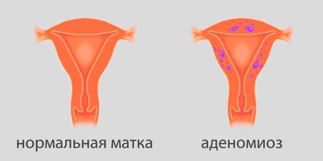 аденомиоз на стенках матки