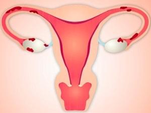внешний и внутренний эндометриоз