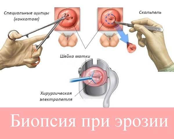 Биопсия при эрозии