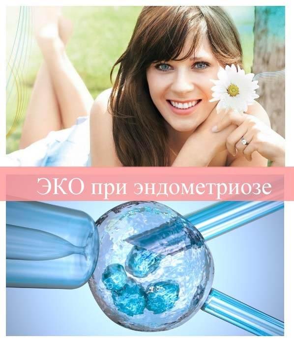 ЭКО при эндометриозе