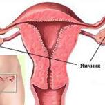 От чего при сексе может болеть матка правы