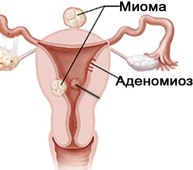 Аденомиоз и миома матки
