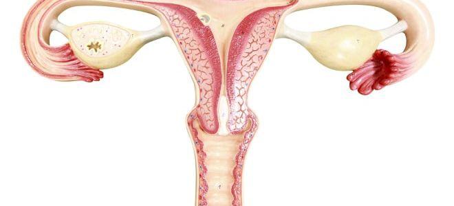 Лечение интрамуральной лейомиомы матки