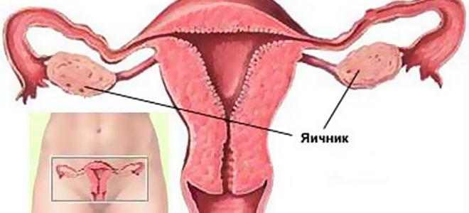Заболевания матки