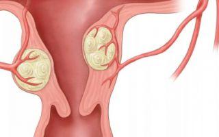 Размеры миомы для операционного вмешательства