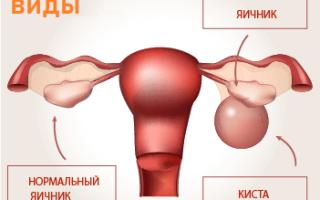 Большая киста яичника как лечить